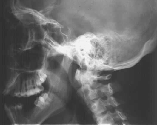 Skull Lateral Open Jaw Nu Fsom X Ray Program